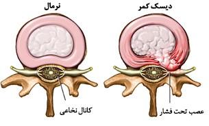 درد عصب سیاتیک