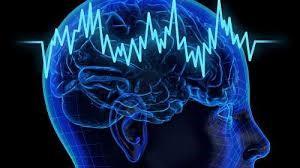 متخصص مغز و اعصاب دکتر مغز و اعصاب پزشک مغز و اعصاب دکتر عباسیون