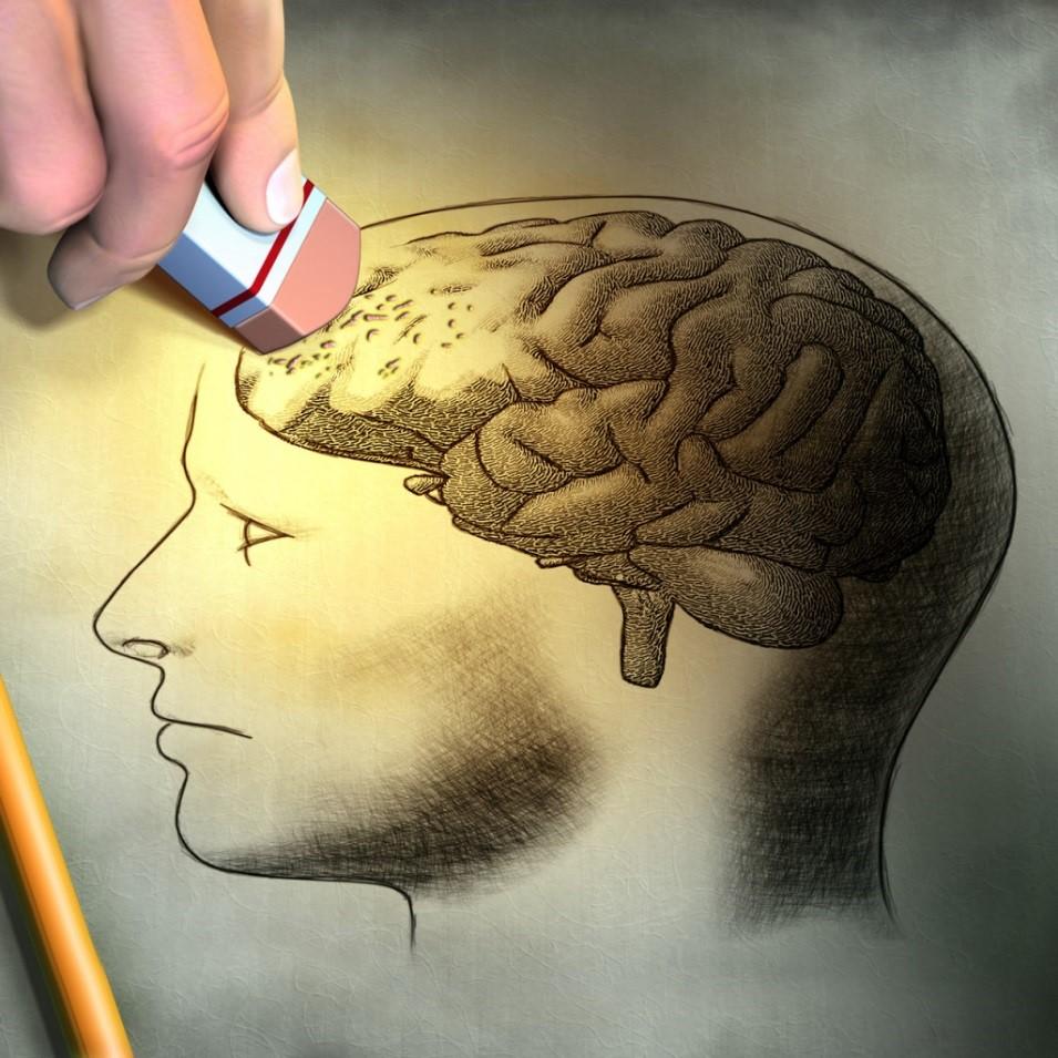 آلزایمر آلزهایمر متخصص مغز و اعصاب دکتر مغز و اعصاب پزشک مغز و اعصاب دکتر عباسیون