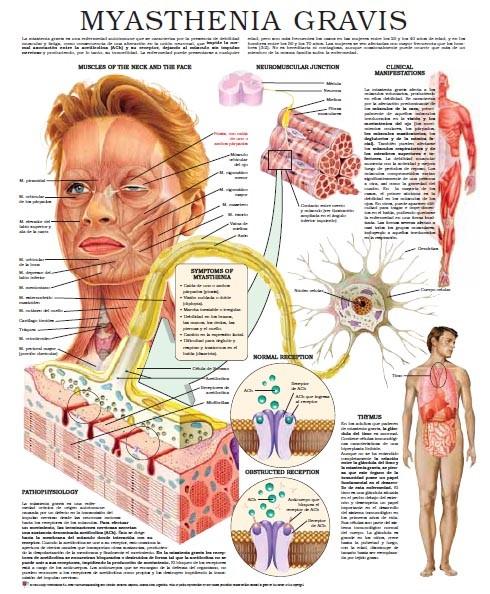 میاستنی گراویس متخصص مغز و اعصاب دکتر مغز و اعصاب پزشک مغز و اعصاب دکتر عباسیون