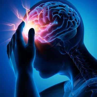 صرع متخصص مغز و اعصاب دکتر مغز و اعصاب پزشک مغز و اعصاب