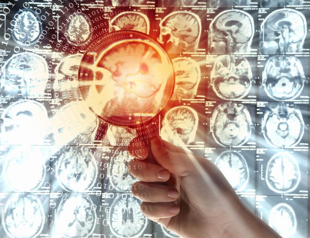 عباسیون پزشک دکتر مغز و اعصاب