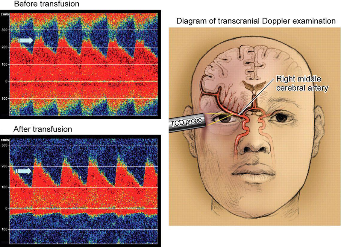 سونوگرافی داپلر متخصص مغز و اعصاب دکتر مغز و اعصاب پزشک مغز و اعصاب دکتر عباسیون
