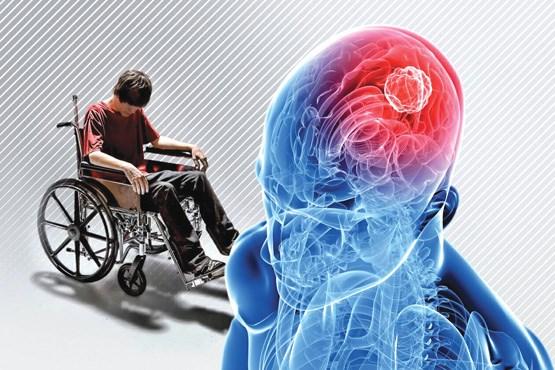 بیماری ام اس پزشک مغز و اعصاب دکتر مغز و اعصاب