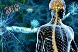 بیماری ام اس دکتر مغز و اعصاب پزشک مغز و اعصاب