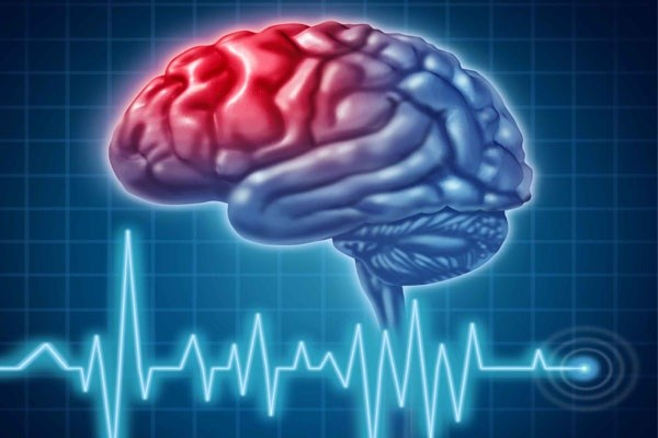 عوارض نورولوژیک
