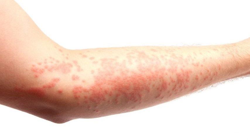 بیمار پوستی - عصبی
