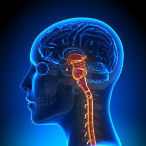 بیماران نورولوژیک