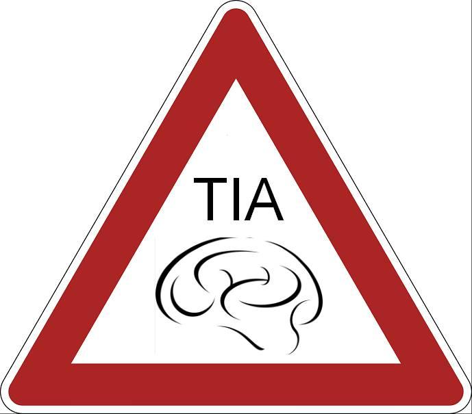 حمله های ایسکمیک مغزی با علائم متغیری همراه است که منجر به بدکاری موضعی عصبي ناشی از اختلال مختصر در جریان خون مغزی میگردد و علت احتمالی آن، وازواسپاسم و تنگي گذرای سیستم شریانی است.